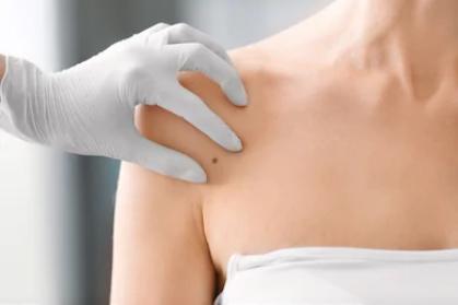 Muskoka Dermatology